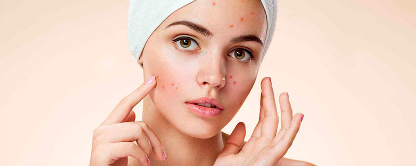The Ultimate Guide to Treat Acne Scars using Home Remedies